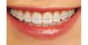 ortodoniq5