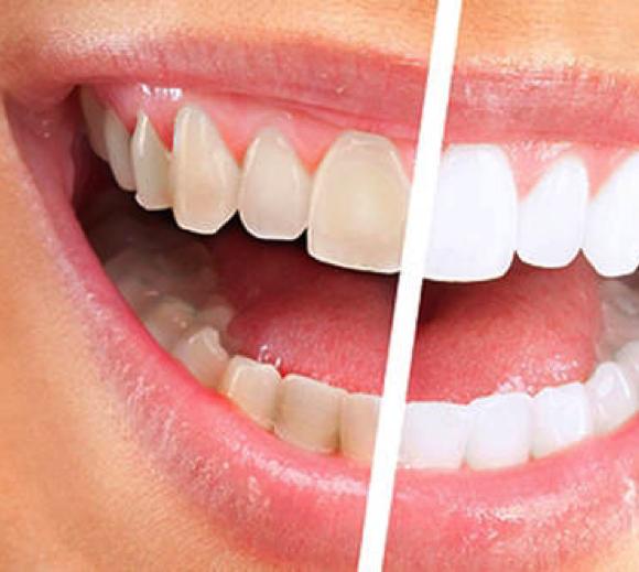 Професионално почистване на зъбите
